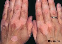 vitiligo dépigmentation traitement