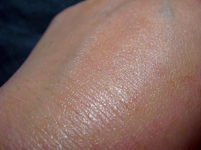 roc retin-ox wrinkle filler