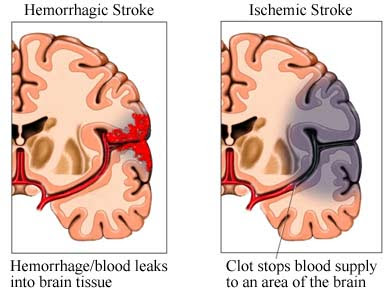 Nursing Diagnosis for Hemorrhagic Stroke