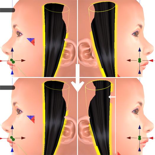 顔側面から見たプリムの位置修正前と後
