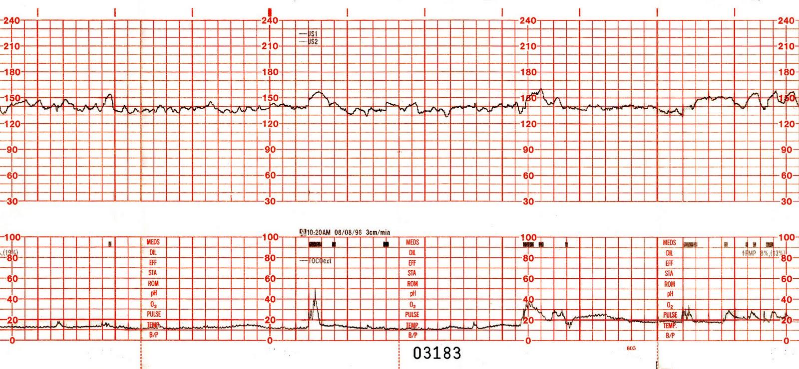 rbmc ob amp gyn supplemental info interpertation of nst