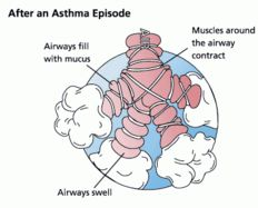 [470px-Asthma_before-after.jpg]