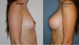 aumento_pecho_mamas_cirujano_plastico
