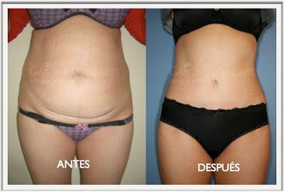abdominoplastia_cirugía_plastica_abdomen_cirujano_plastico