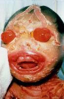 harlequin syndrome