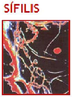 AIDS HIV Tratamento Causa Doença O que é AIDS