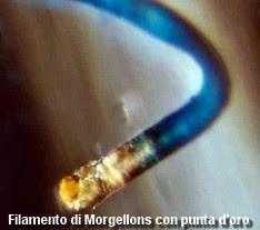 Filamento di Morgellons con punta d'oro