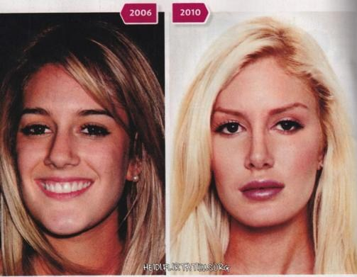 heidi montag before and after 10 surgeries. makeup Heidi Montag Plastic