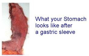 Suethsayings Gastric Sleeve Story