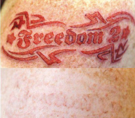 cross tattoos celtic free tattoo removal cream