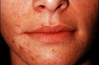 krim kulit kortikosteroid
