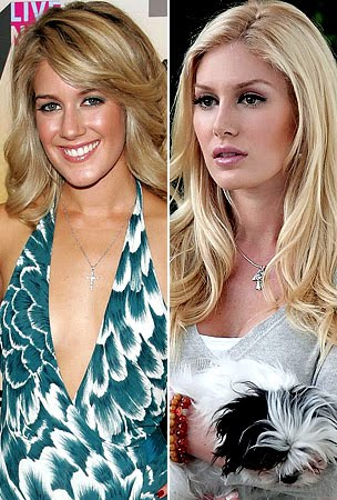 heidi montag plastic surgery before and after people. heidi montag plastic surgery