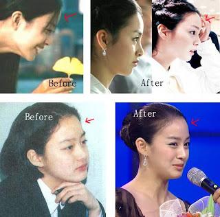 Kim Tae Hui