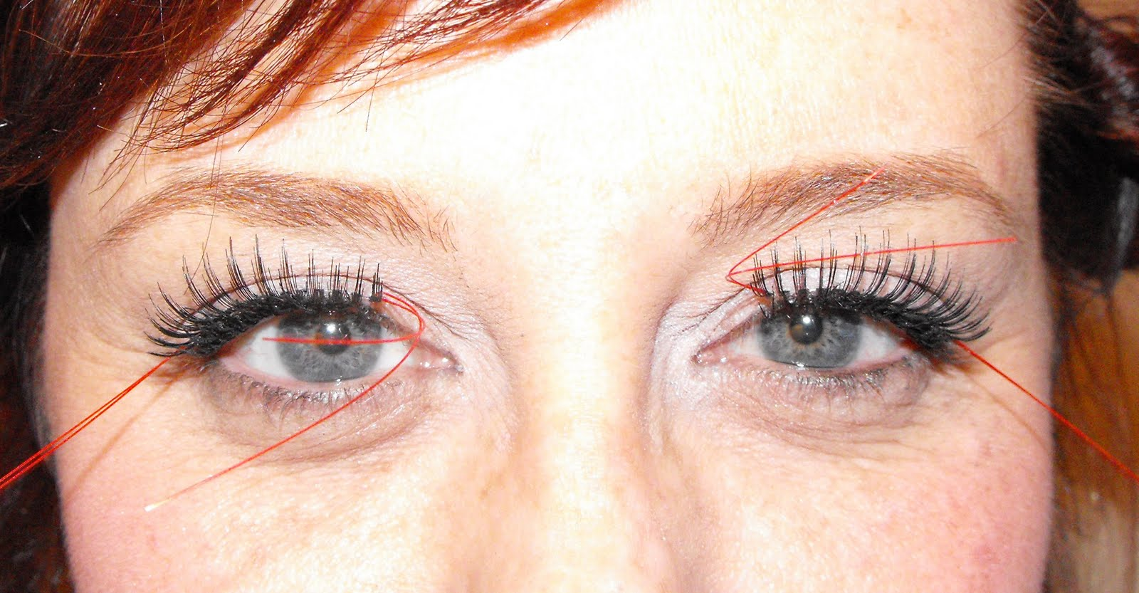 Pics For > Double Eyelashes Distichiasis