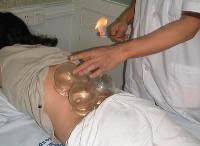 masaje con ventosas en Madrid