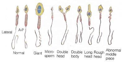 anatomi sperma