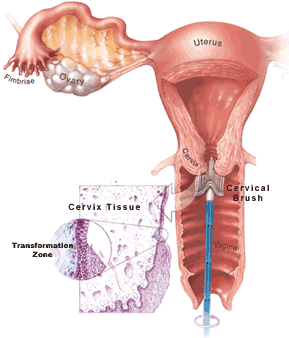 Abnormal glandular pap smear in vagina with condom and