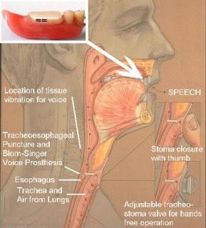 Esophageal Speech  Trachscom