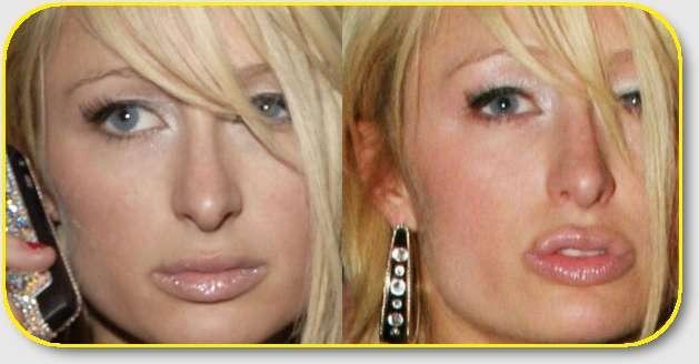 Cirugia de famosas antes y despues