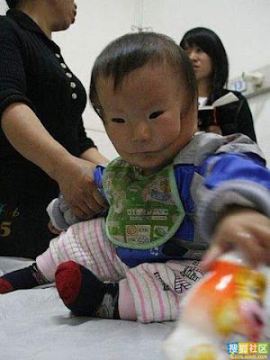 doubleface 2 A Baby In China Born With 2 Faces