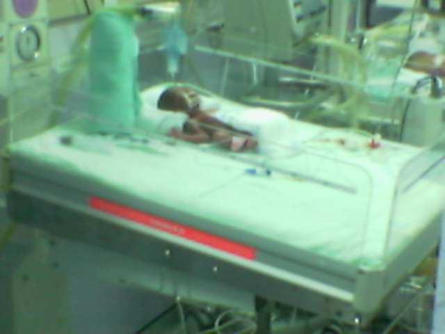 Nurhumaira Atiqah seberat 700gm pada 08.11.2006