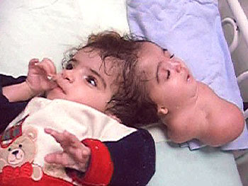 The Two Headed Girl : Manar Maged [R.I.P] - YouTube