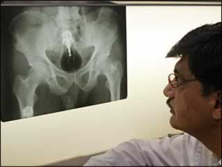 Unbelievable X-rays (12) 1