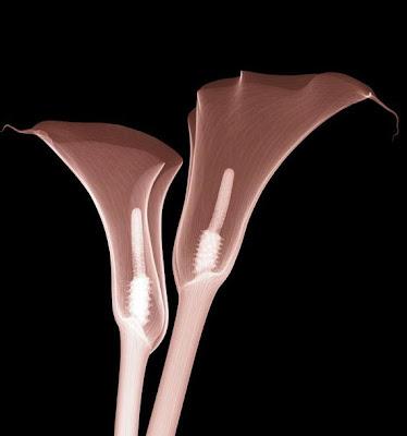 Flowers X-rays (15) 10