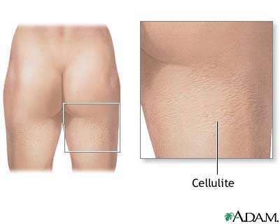 Does Revitol Cellulite Cream Really Work?