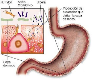 how to use mastic gum for h pylori
