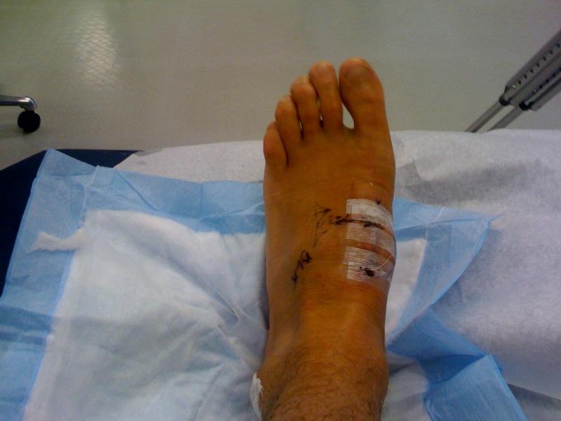 [foot+3]