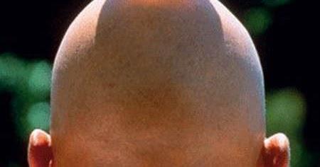 Kumpulan Foto Lucu Kepala Botak Payung Imut