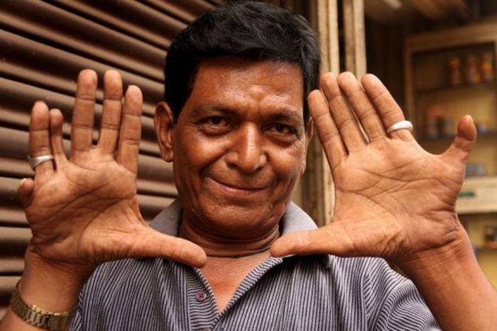 Seorang pria memiliki 6 jari di kanan dan 7 jari di tangan kiri