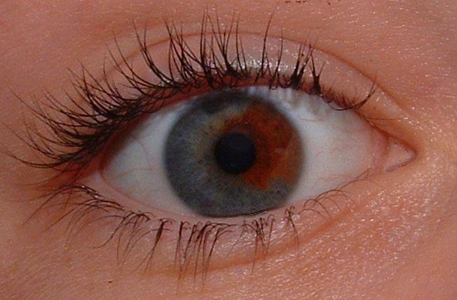 Iris Mata Yang Berwarna-warni Yang Merupakan Kondisi Heterokromia