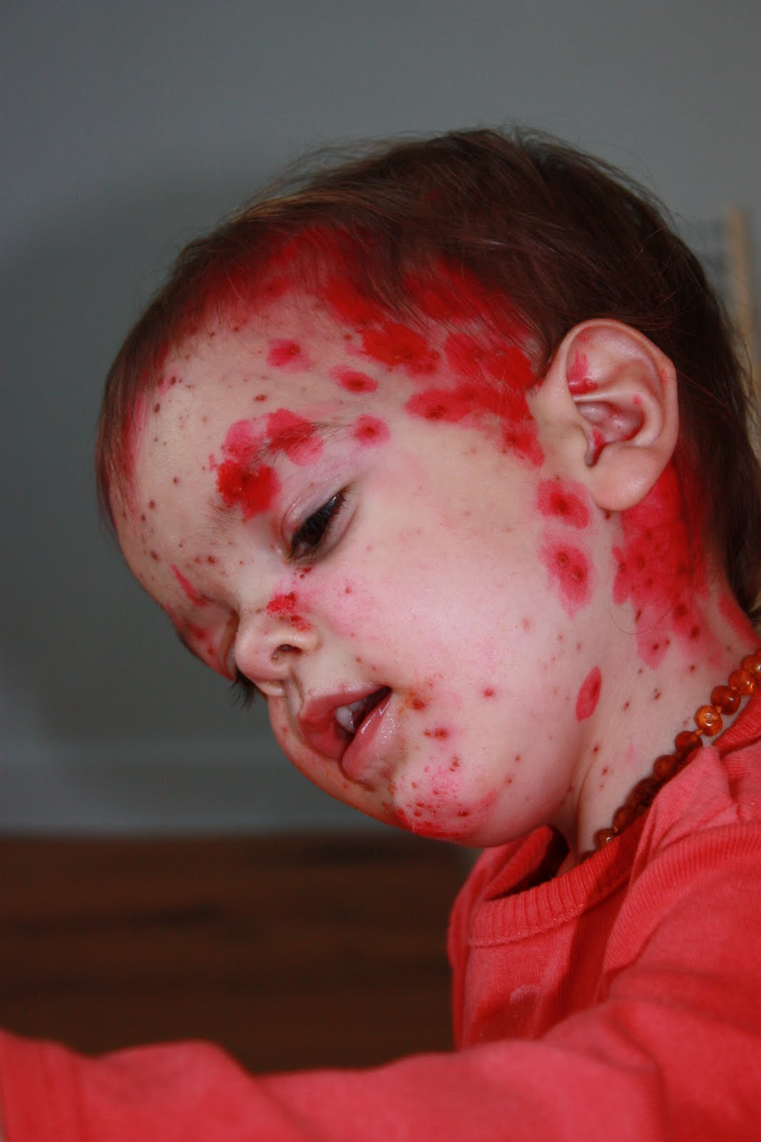 Zovirax varicelle bébé - Brand cialis canada