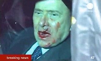 Verletzter Berlusconi