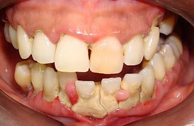 clareamento dental caseiro quanto tempo ficar com a moldeira