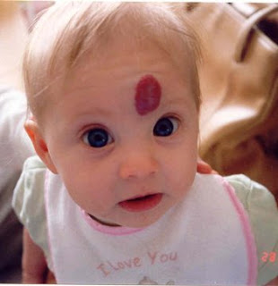 الوحمة..علامة فارقة في جسم الطفل birthmark.jpg
