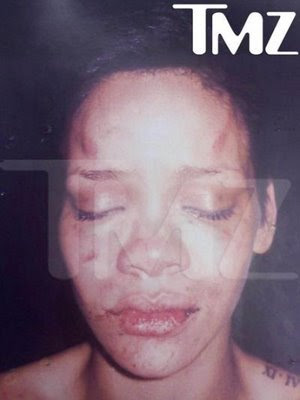 This is a photo of Rihanna after her fight with Chris Brown.