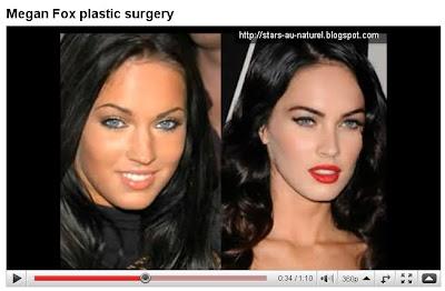 megan fox surgery