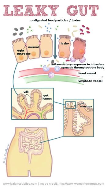 how to clean candida out of your intestine