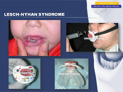 lesch nyhan syndrome research paper Functional analysis of self-injurious behavior in an adult with lesch-nyhan syndrome.