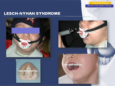 the detection and treatment of lesch nyhan syndrome In a patient with the lesch-nyhan syndrome we found & nyhan, w l detection of heterozygous carriers of the dog before and during treatment with.