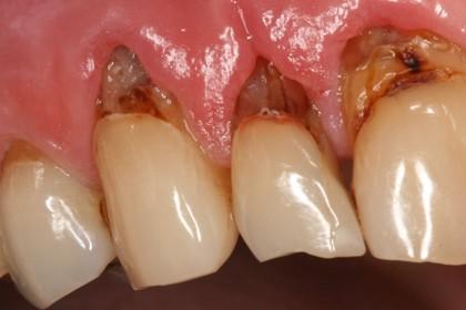 bruna fläckar på tänderna