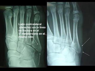 Fisiosport v lesiones de tobillo for Cuarto y quinto metatarsiano