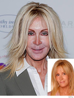 Joan van Ark after chemical peel