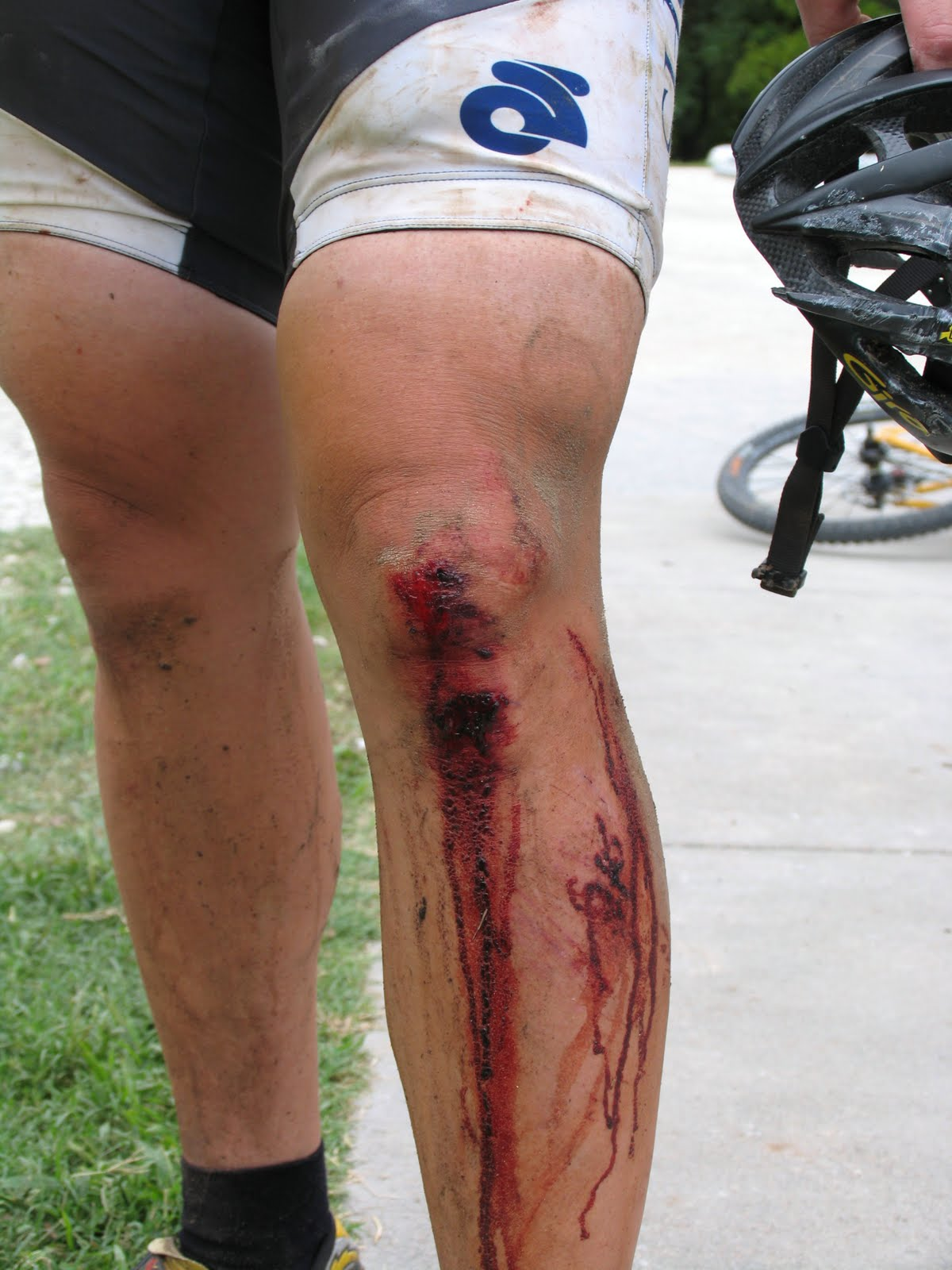 Broken Knee Cap-2.bp.blogspot.com