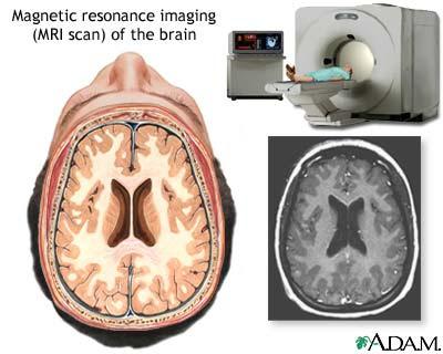 TAC scan