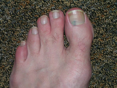 This Next Picture Reveals My Entire Left Foot It Is A Glorious Site To Behold See The Nasty Black Spot On Toenail Nope That S Not From Running