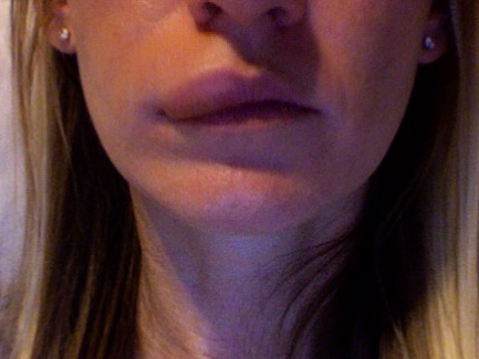Опухли губы что делать в домашних условиях 624
